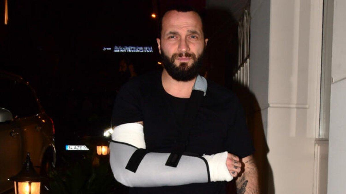 Berkay kolunu kırdı