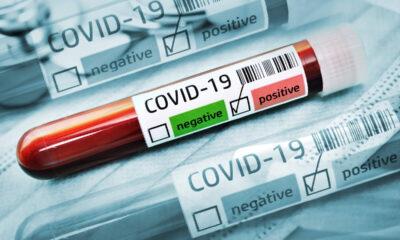 Son Dakika | Sivasspor'da iki koronavirüs vakası!